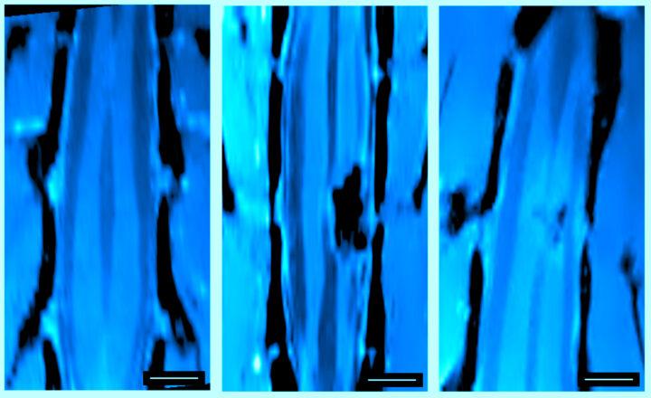 Reconectan neuronas de lesiones medulares in vivo a través de esponjas de nanotubos de carbono