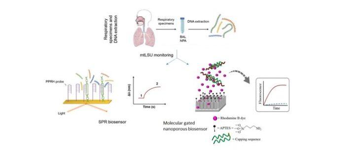 Desarrollan biosensores para la mejor detección del hongo P. jirovecii, responsable de la neumonía por Pneumocystis