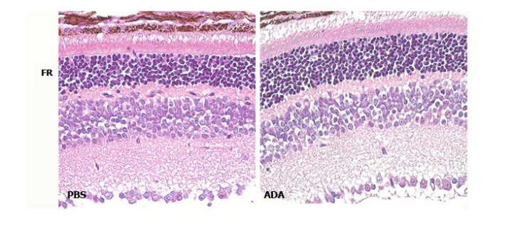 El CIBER-BBN colabora con la ONCE y el CIPF para intentar retrasar la pérdida de visión en las distrofias hereditarias de retina