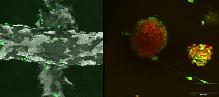 CIC biomaGUNE explora las entrañas de tumores cultivados en andamios tridimensionales inteligentes